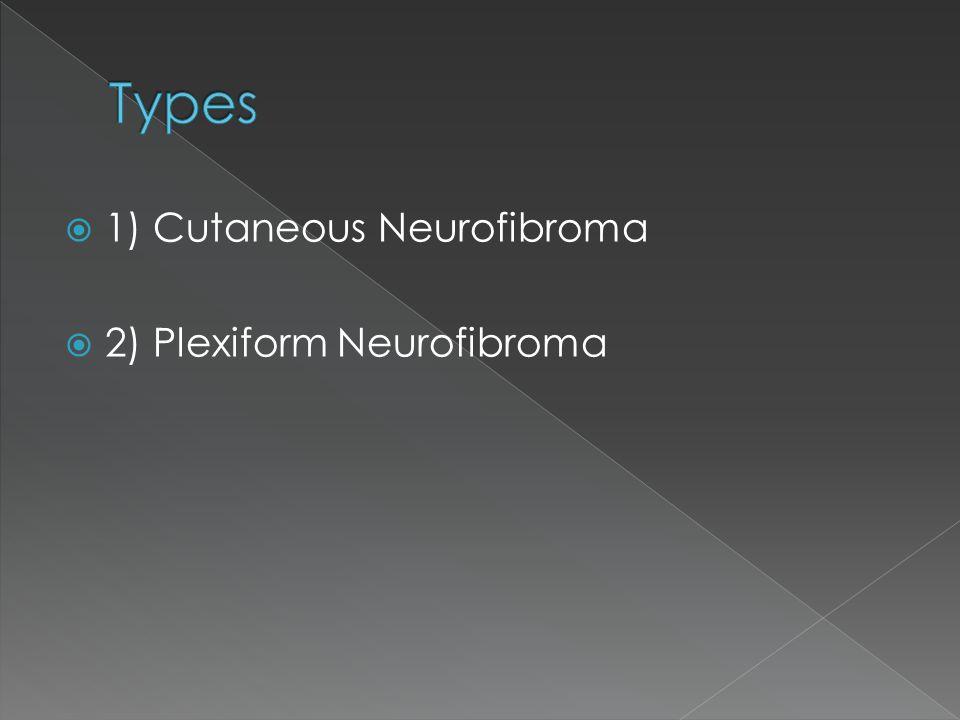 1) Cutaneous Neurofibroma  2) Plexiform Neurofibroma