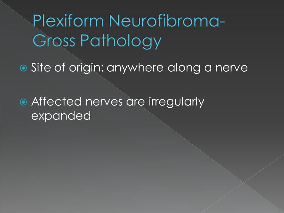  Site of origin: anywhere along a nerve  Affected nerves are irregularly expanded