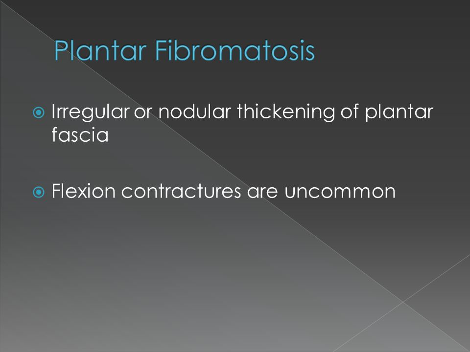  Irregular or nodular thickening of plantar fascia  Flexion contractures are uncommon