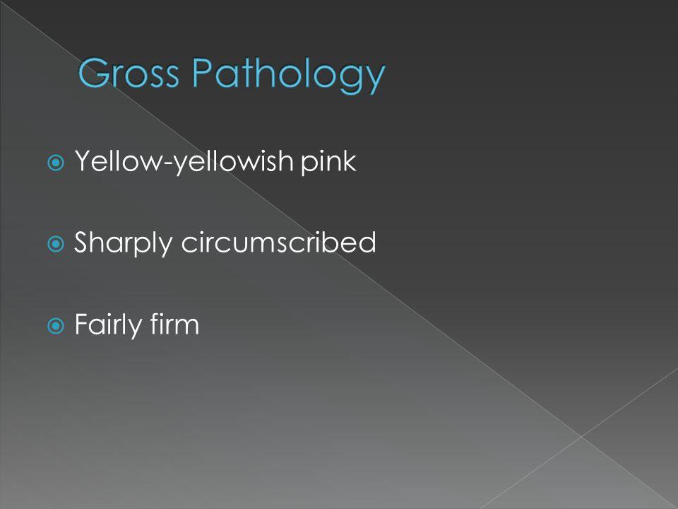 Yellow-yellowish pink  Sharply circumscribed  Fairly firm