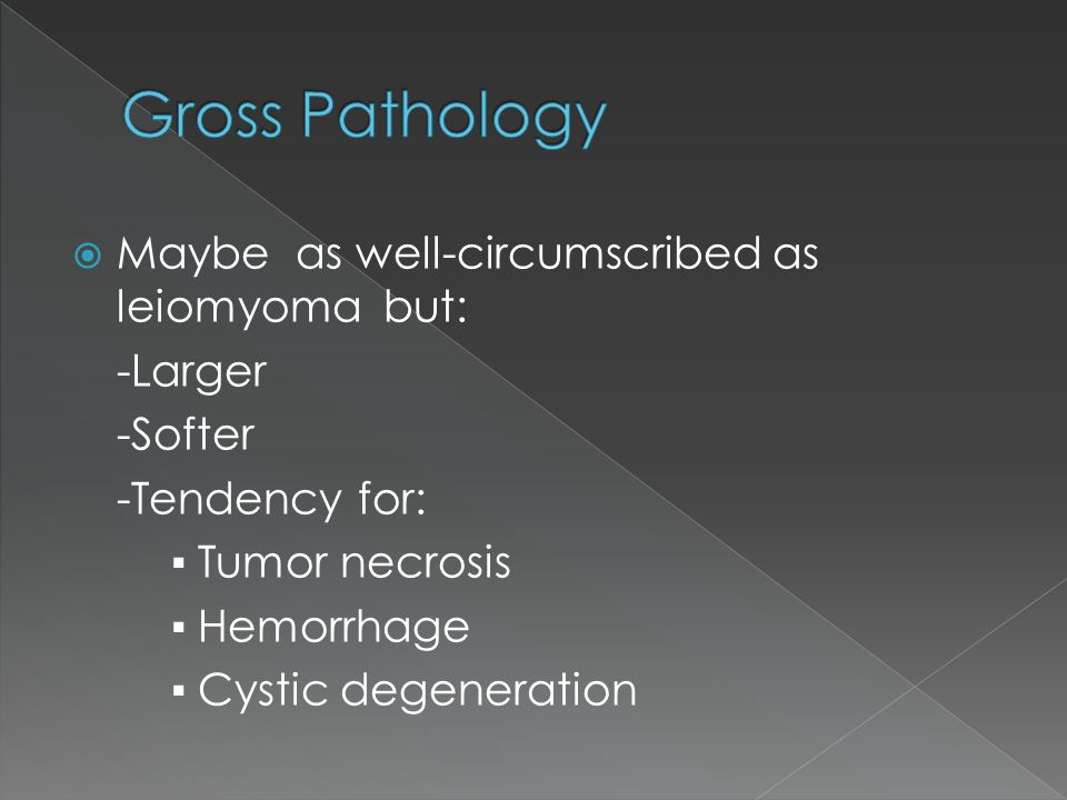  Maybe as well-circumscribed as leiomyoma but: -Larger -Softer -Tendency for: ▪ Tumor necrosis ▪ Hemorrhage ▪ Cystic degeneration