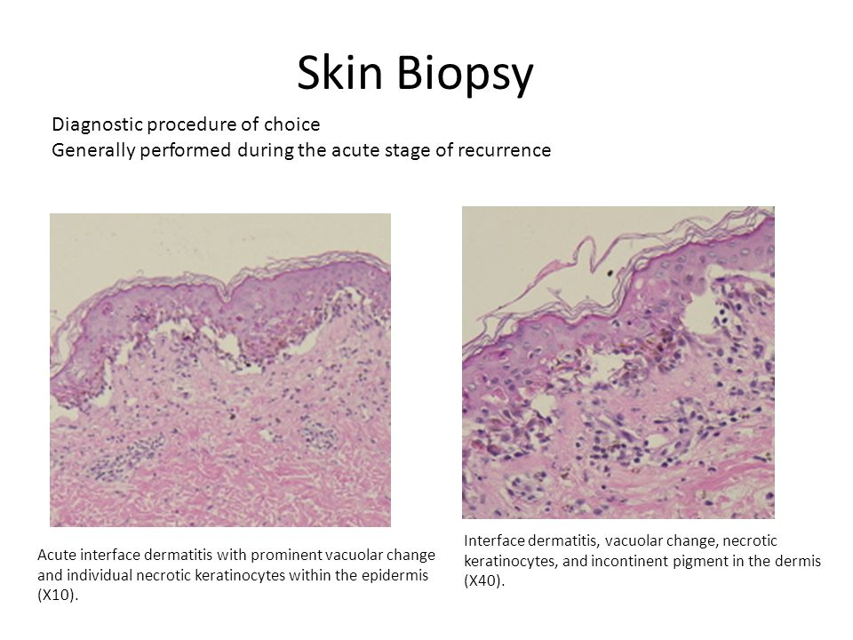 Skin Biopsy Acute interface dermatitis with prominent vacuolar change and individual necrotic keratinocytes within the epidermis (X10). Interface derm