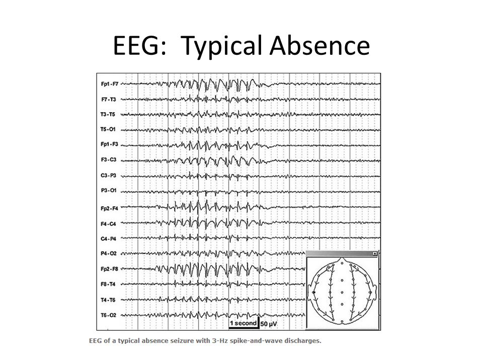 EEG: Typical Absence