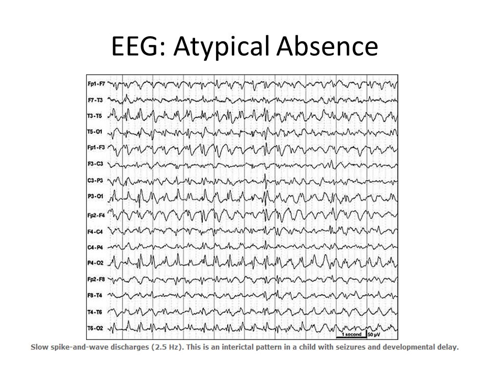 EEG: Atypical Absence