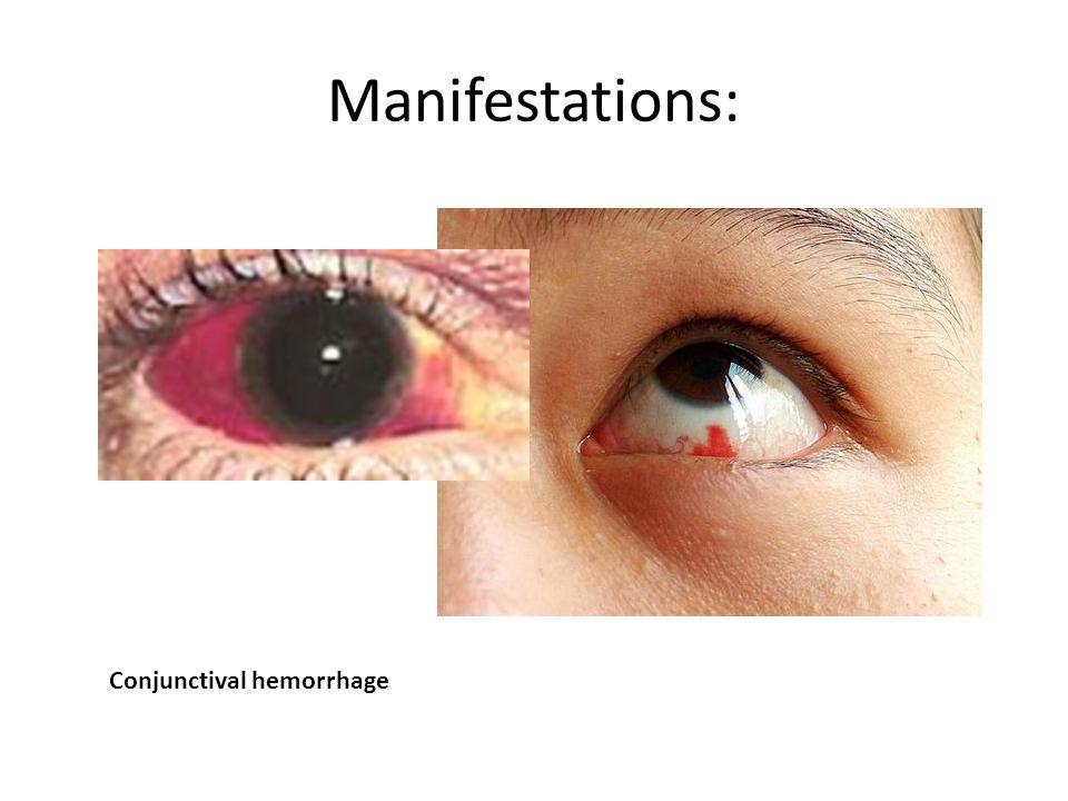 Manifestations: Conjunctival hemorrhage