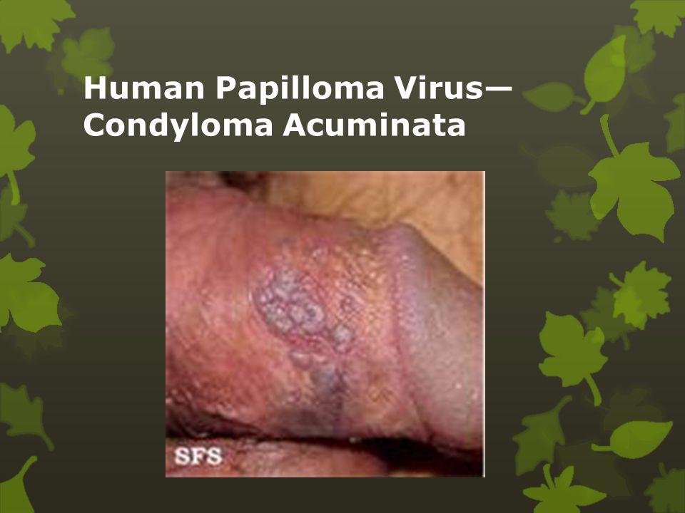 Human Papilloma Virus— Condyloma Acuminata