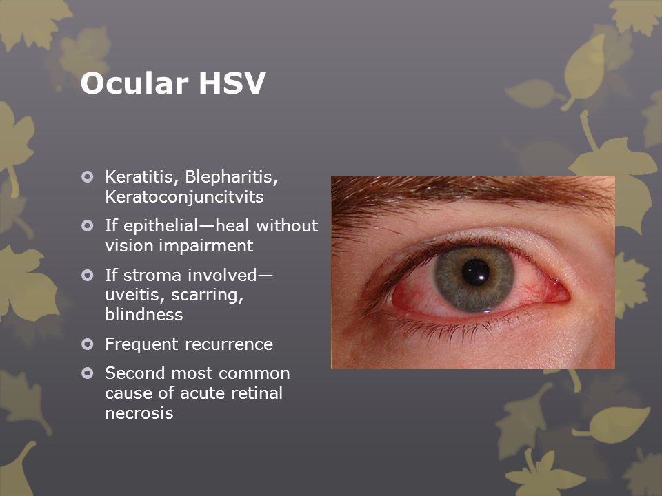 Ocular HSV  Keratitis, Blepharitis, Keratoconjuncitvits  If epithelial—heal without vision impairment  If stroma involved— uveitis, scarring, blind
