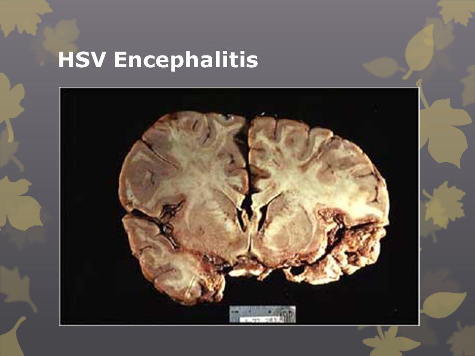 HSV Encephalitis