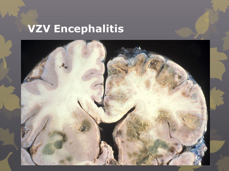 VZV Encephalitis