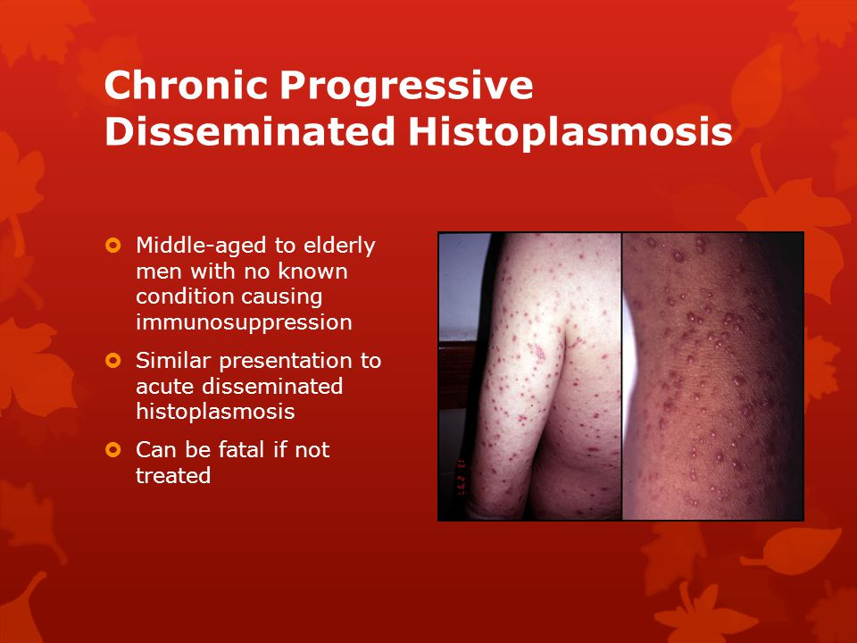 Chronic Progressive Disseminated Histoplasmosis  Middle-aged to elderly men with no known condition causing immunosuppression  Similar presentation