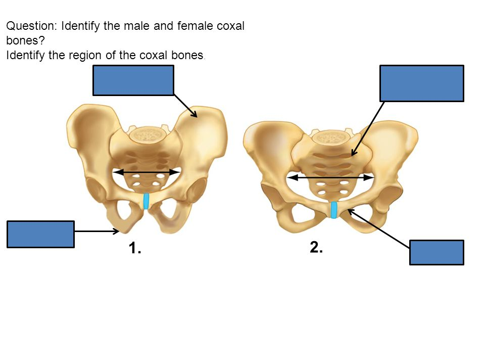 Question: Identify the male and female coxal bones? Identify the region of the coxal bones. 1. 2.