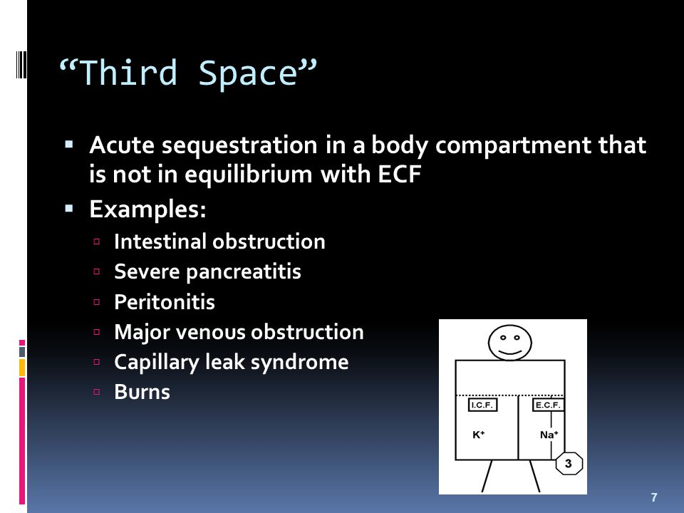 """""""Third Space""""  Acute sequestration in a body compartment that is not in equilibrium with ECF  Examples:  Intestinal obstruction  Severe pancreatit"""