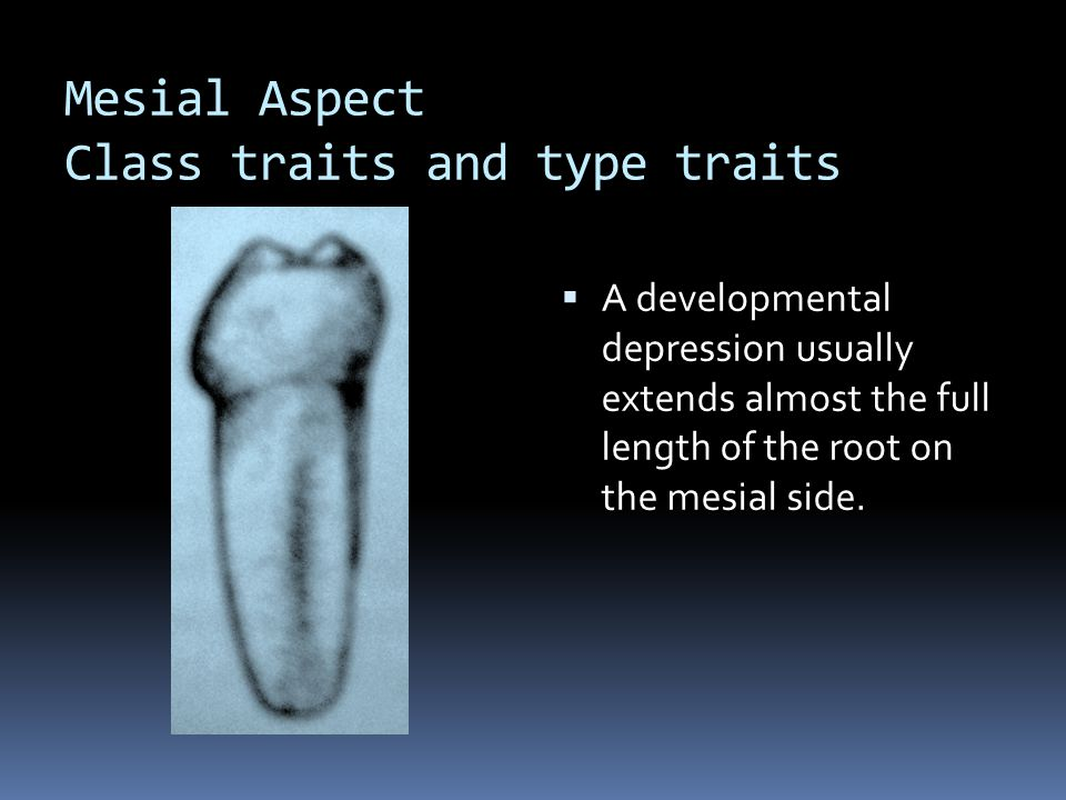 Mesial Aspect Class traits and type traits  A developmental depression usually extends almost the full length of the root on the mesial side.