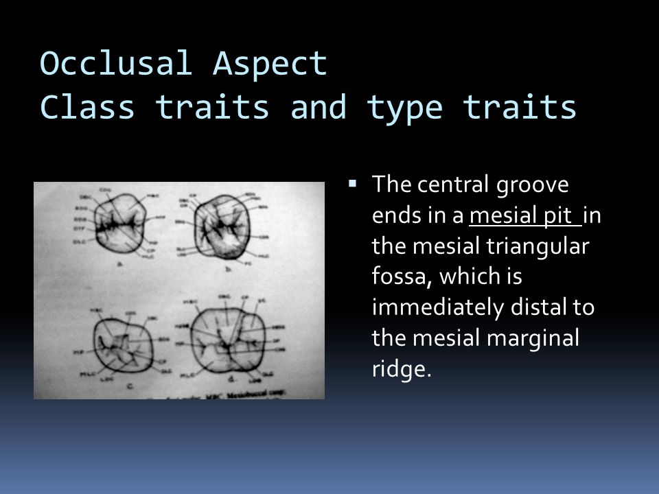 Occlusal Aspect Class traits and type traits  The central groove ends in a mesial pit in the mesial triangular fossa, which is immediately distal to the mesial marginal ridge.