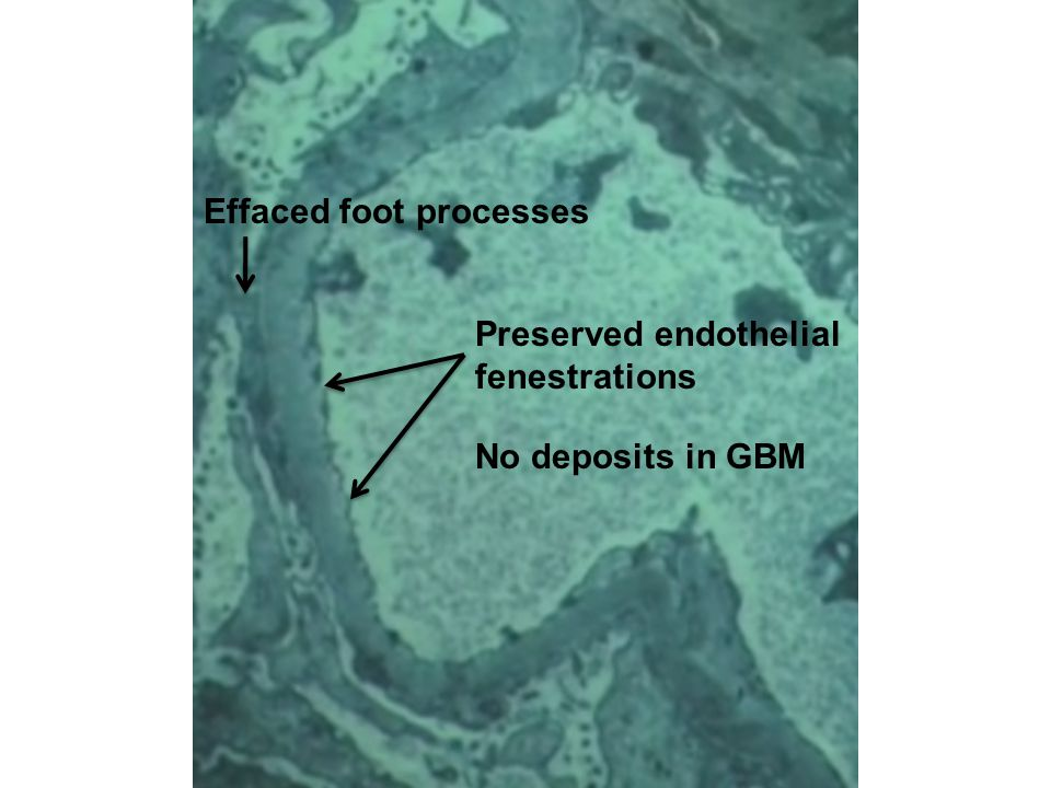 No deposits in GBM Preserved endothelial fenestrations Effaced foot processes