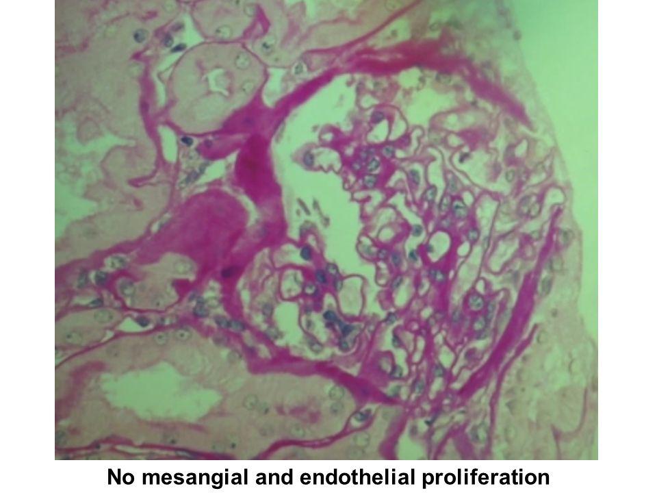 No mesangial and endothelial proliferation