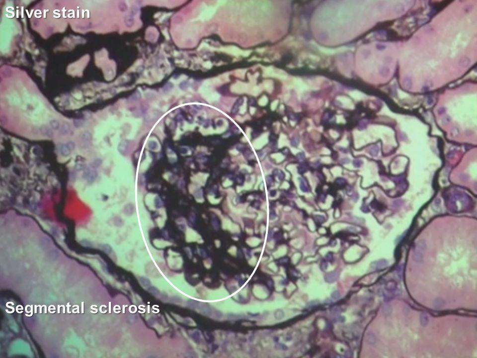 Silver stain Segmental sclerosis
