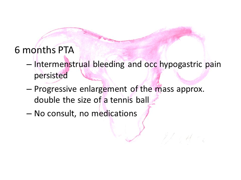 6 months PTA – Intermenstrual bleeding and occ hypogastric pain persisted – Progressive enlargement of the mass approx. double the size of a tennis ba