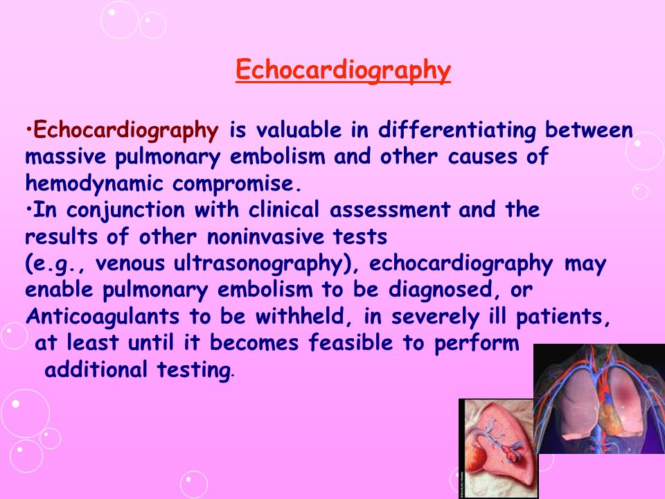 Echocardiography Echocardiography is valuable in differentiating between massive pulmonary embolism and other causes of hemodynamic compromise.