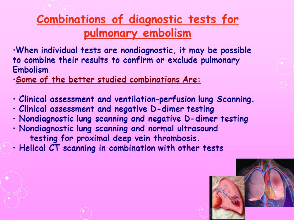 Combinations of diagnostic tests for pulmonary embolism When individual tests are nondiagnostic, it may be possible to combine their results to confir