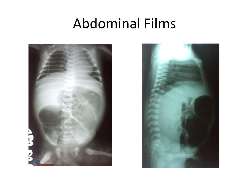 Abdominal Films