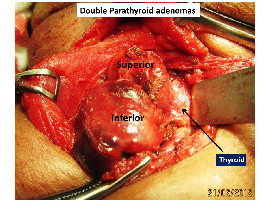 Thyroid Superior Inferior Double Parathyroid adenomas