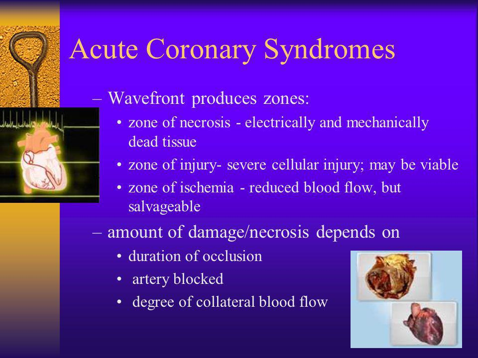 Acute Coronary Syndromes –Wavefront produces zones: zone of necrosis - electrically and mechanically dead tissue zone of injury- severe cellular injur
