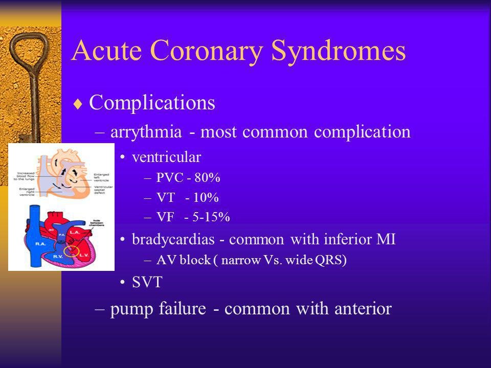 Acute Coronary Syndromes  Complications –arrythmia - most common complication ventricular –PVC - 80% –VT - 10% –VF - 5-15% bradycardias - common with