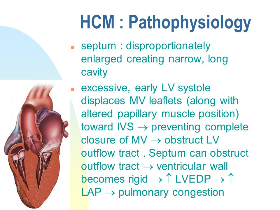 HCM : Pathophysiology n septum : disproportionately enlarged creating narrow, long cavity n excessive, early LV systole displaces MV leaflets (along w