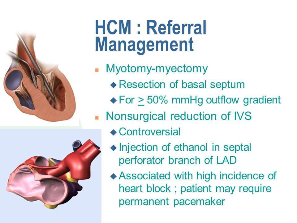 HCM : Referral Management n Myotomy-myectomy u Resection of basal septum u For > 50% mmHg outflow gradient n Nonsurgical reduction of IVS u Controvers