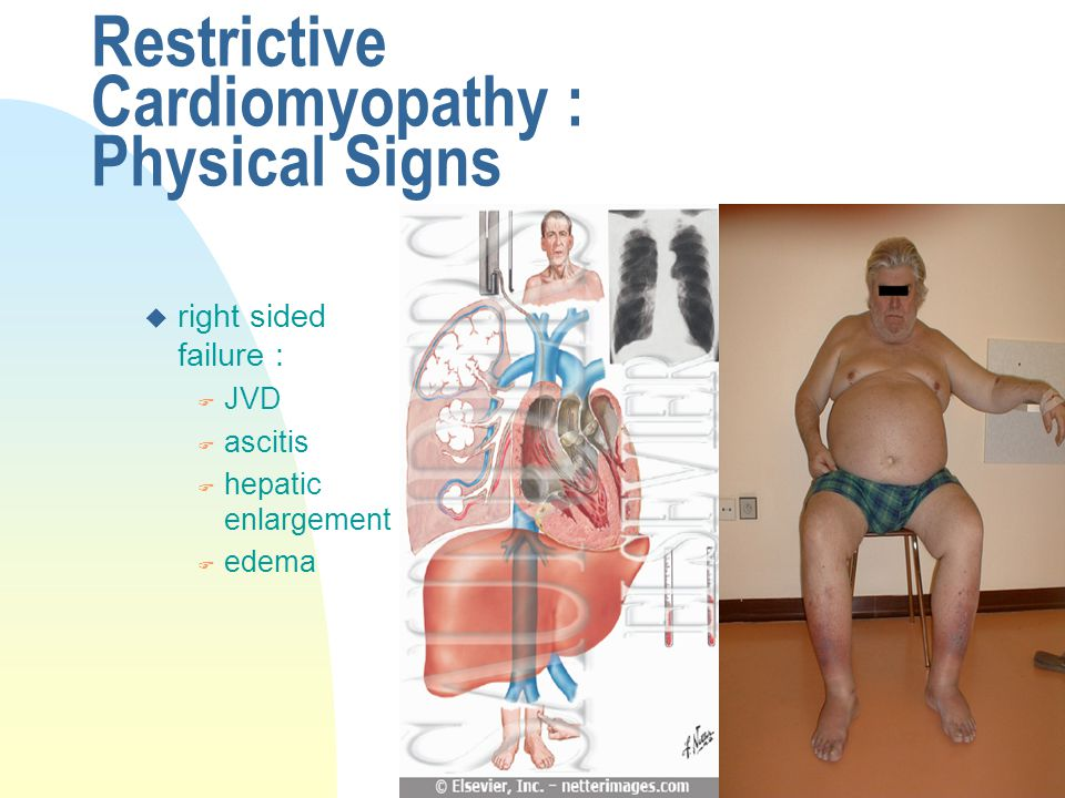 Restrictive Cardiomyopathy : Physical Signs u right sided failure : F JVD F ascitis F hepatic enlargement F edema
