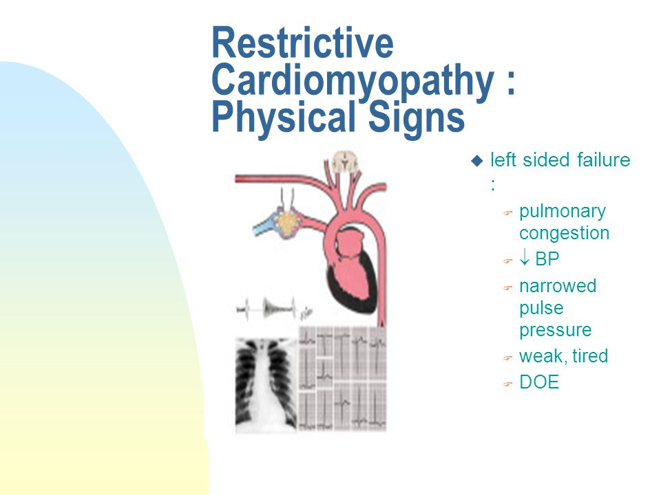 Restrictive Cardiomyopathy : Physical Signs u left sided failure : F pulmonary congestion F  BP F narrowed pulse pressure F weak, tired F DOE
