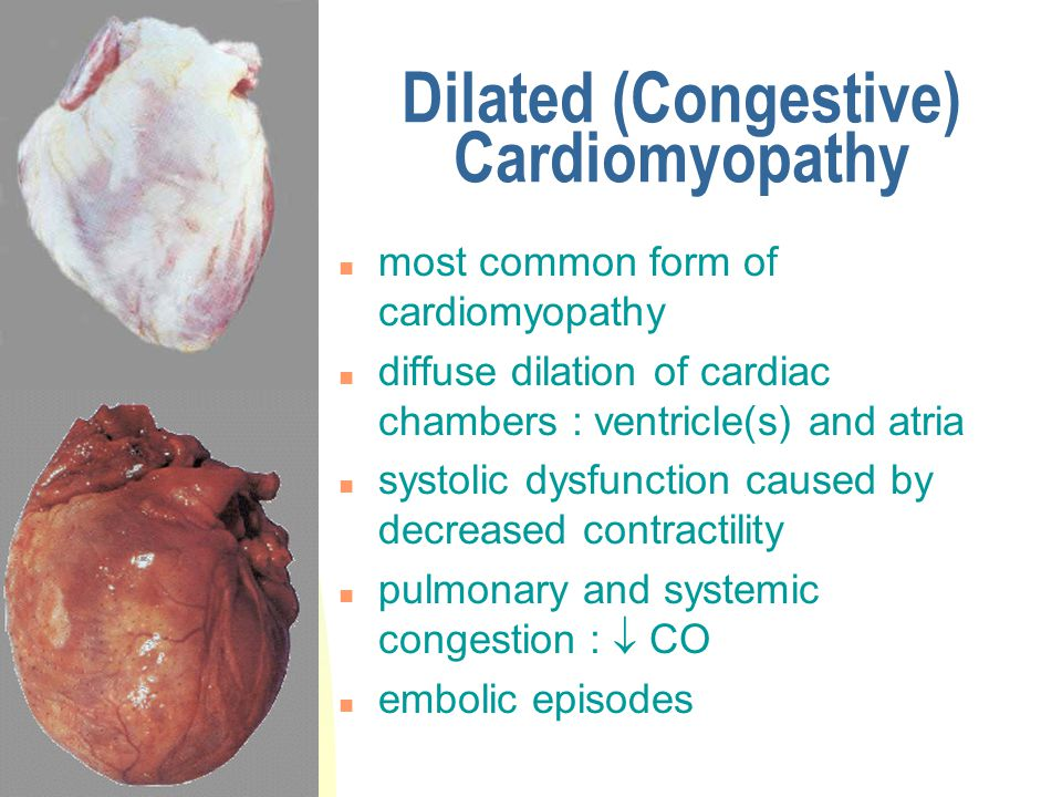 Dilated (Congestive) Cardiomyopathy n most common form of cardiomyopathy n diffuse dilation of cardiac chambers : ventricle(s) and atria n systolic dy