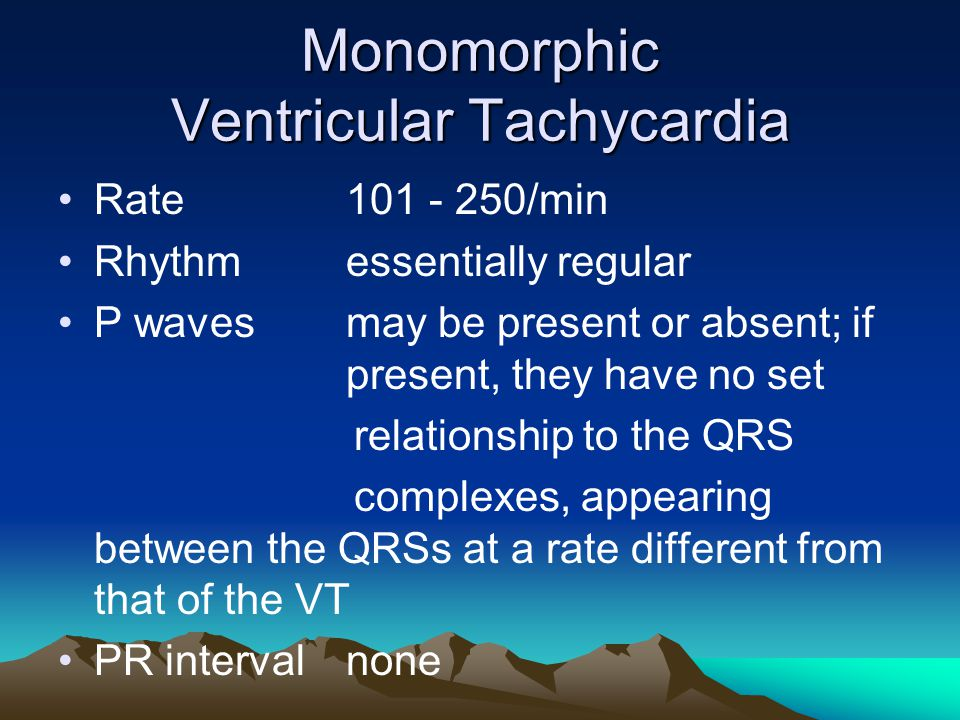 Monomorphic Ventricular Tachycardia Rate101 - 250/min Rhythmessentially regular P wavesmay be present or absent; if present, they have no set relation