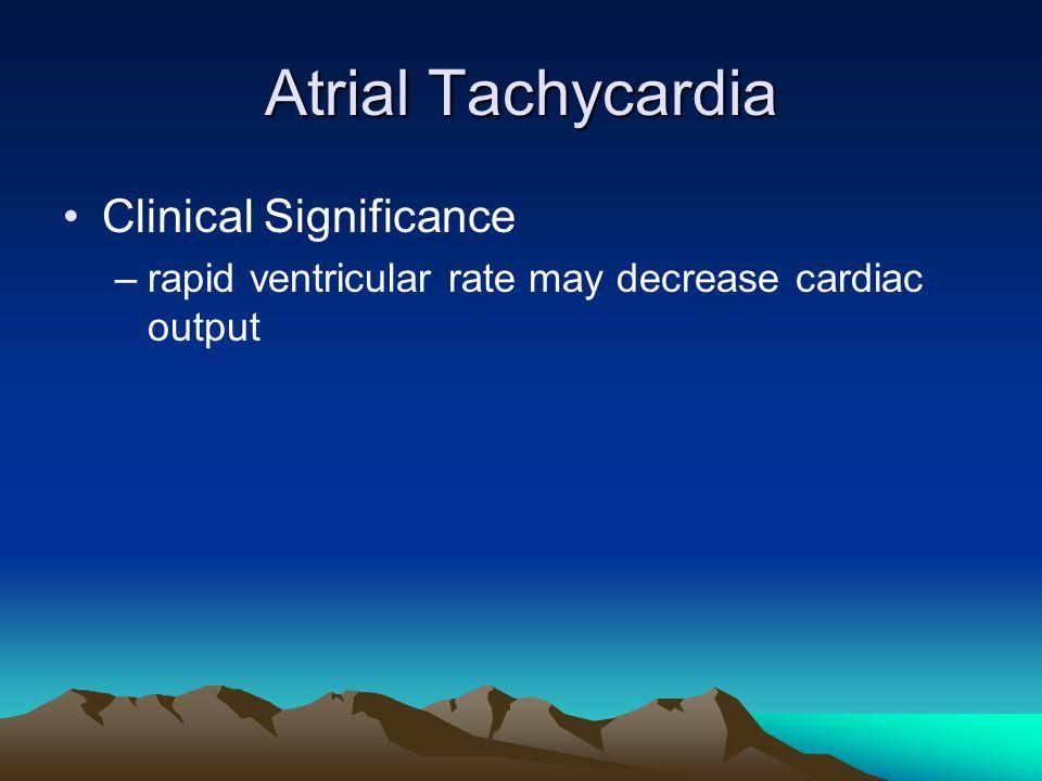 Atrial Tachycardia Clinical Significance –rapid ventricular rate may decrease cardiac output