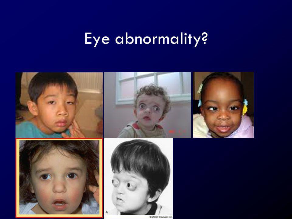 Eye abnormality?