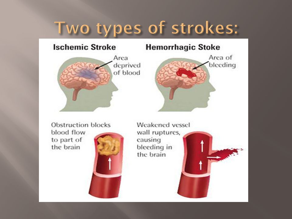  Stroke kills about 134,000 Americans annually  Stroke is the 3 rd leading cause of death in the US  Stroke is a life changing event that affects the victim as well as family members
