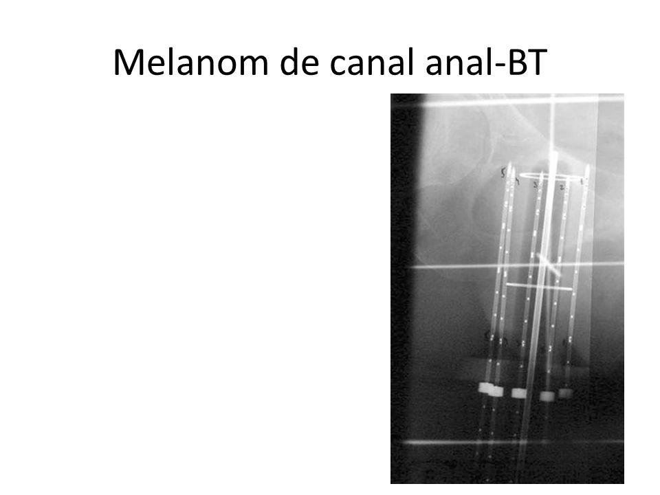 Melanom de canal anal-BT