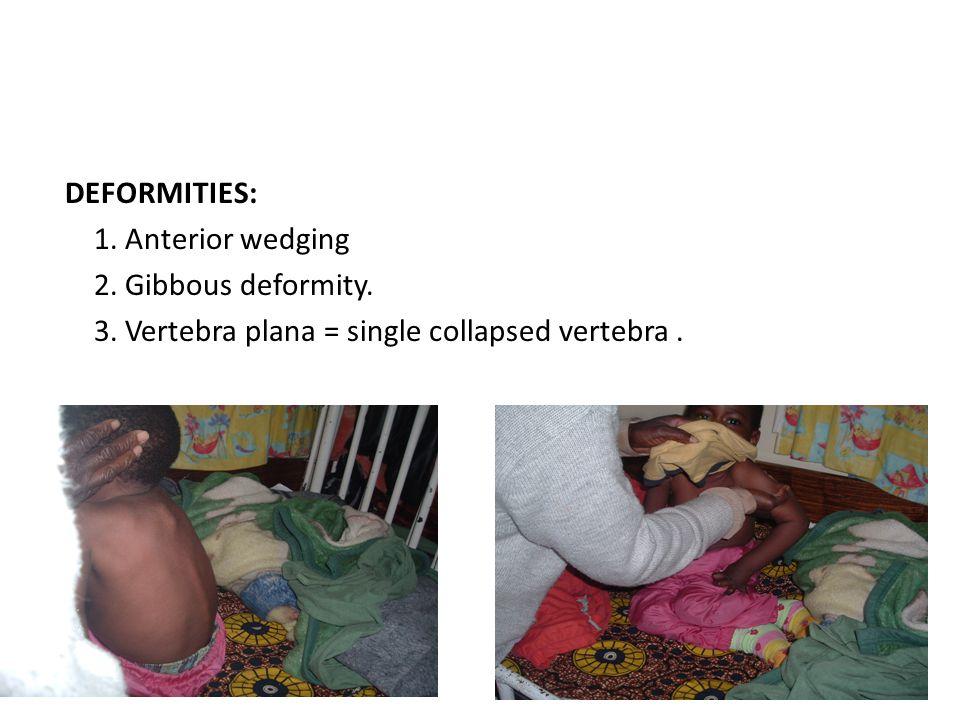 DEFORMITIES: 1. Anterior wedging 2. Gibbous deformity. 3. Vertebra plana = single collapsed vertebra.