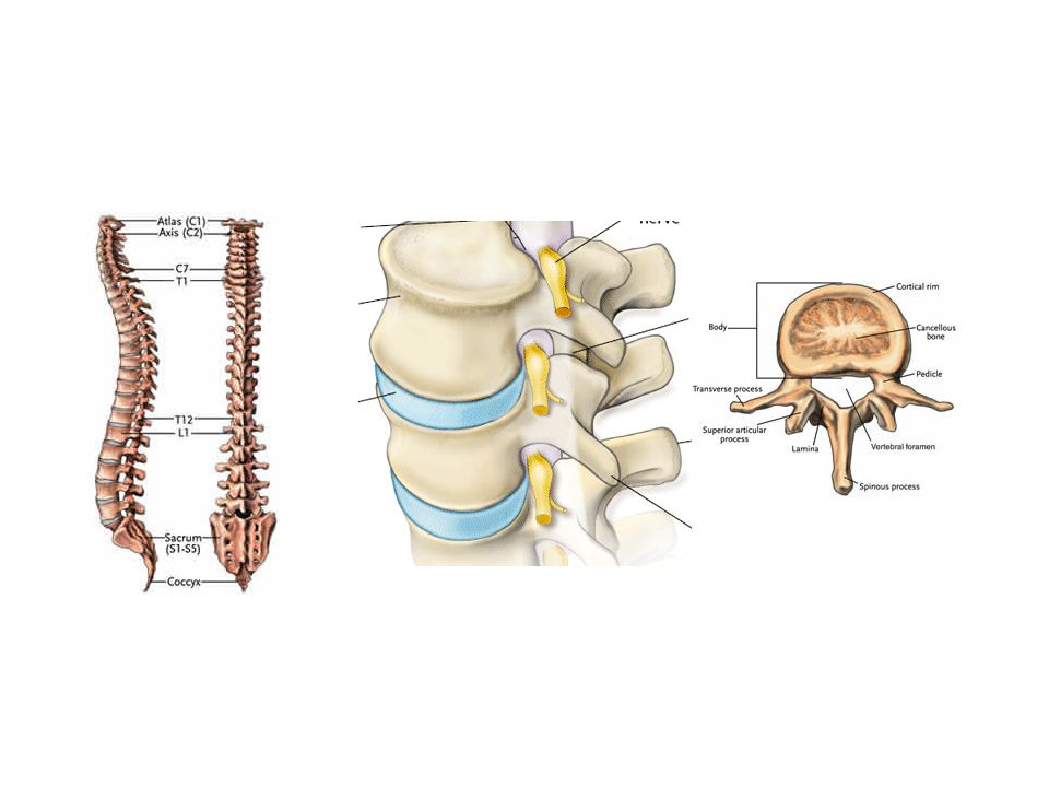 DIFFERENTIAL DIAGNOSIS The differential diagnosis of the tuberculous spine includes: 1.SPINAL INFECTIONS- pyogenic, brucella & fungal.