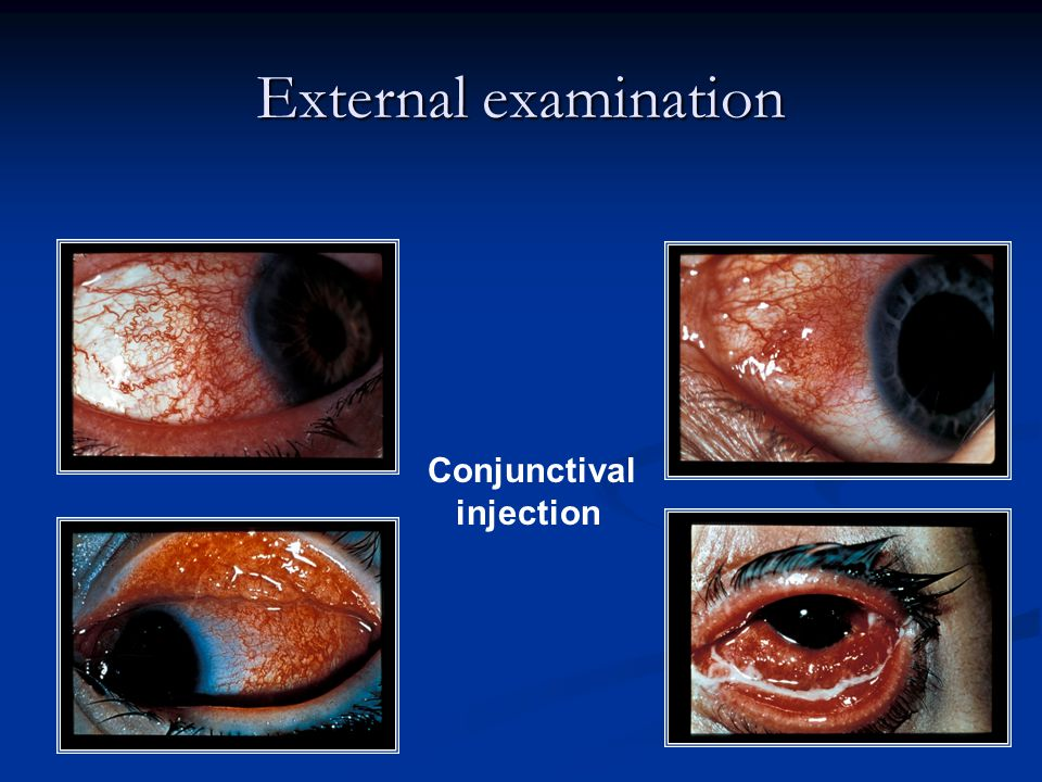 External examination Conjunctival injection