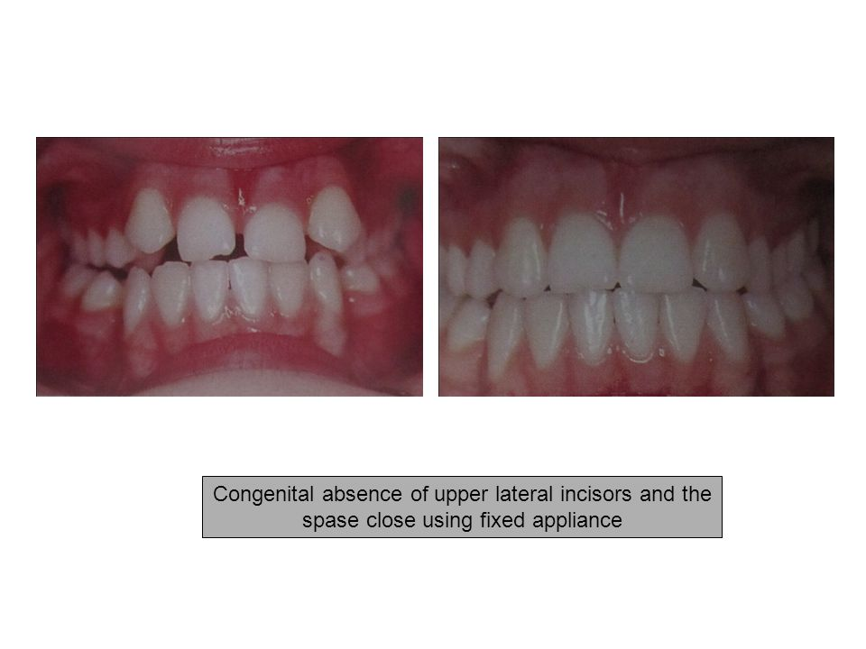 Congenital absence of upper lateral incisors and the spase close using fixed appliance