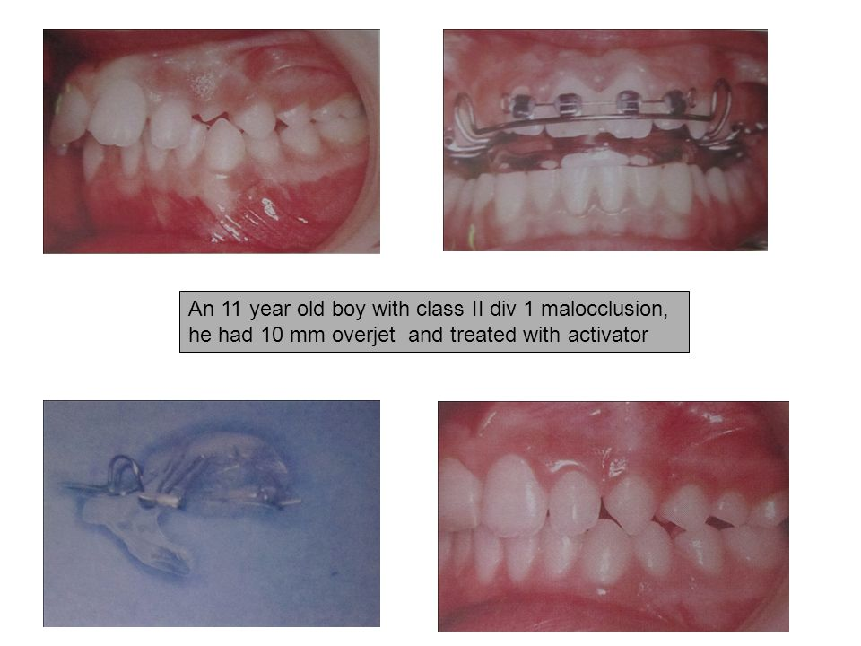 An 11 year old boy with class II div 1 malocclusion, he had 10 mm overjet and treated with activator