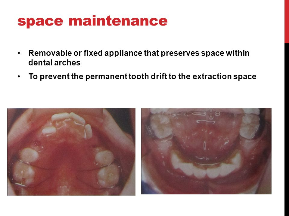 AdvantageDisadvantage -To minimize or eliminate the need for appliances - Need a space maintainer following extraction of the first premolar if the crowding is severe.