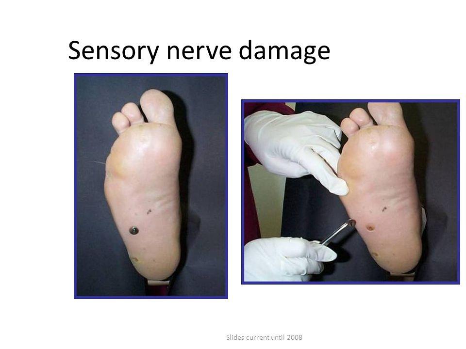 Slides current until 2008 Sensory nerve damage