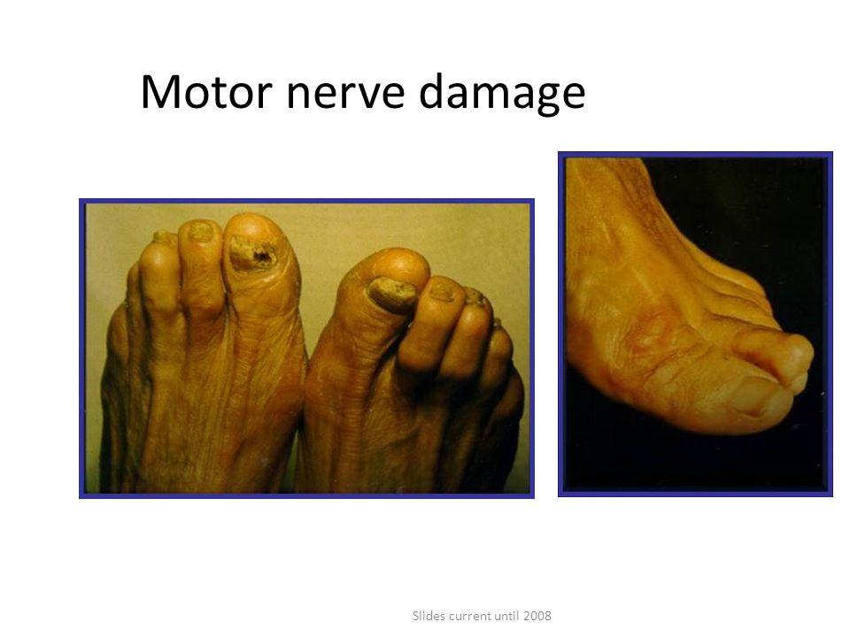 Slides current until 2008 Motor nerve damage