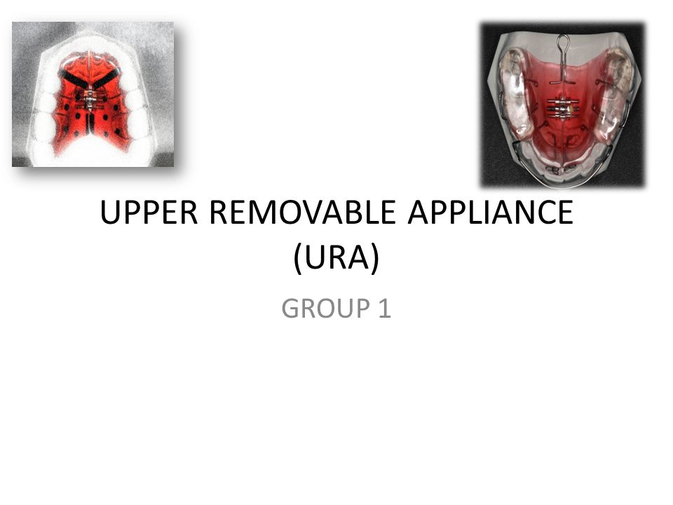 UPPER REMOVABLE APPLIANCE (URA) GROUP 1