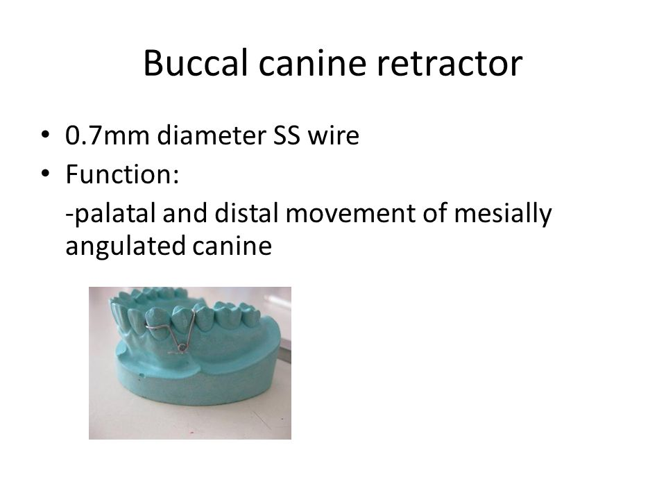 Buccal canine retractor 0.7mm diameter SS wire Function: -palatal and distal movement of mesially angulated canine