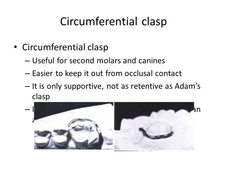 Circumferential clasp – Useful for second molars and canines – Easier to keep it out from occlusal contact – It is only supportive, not as retentive a
