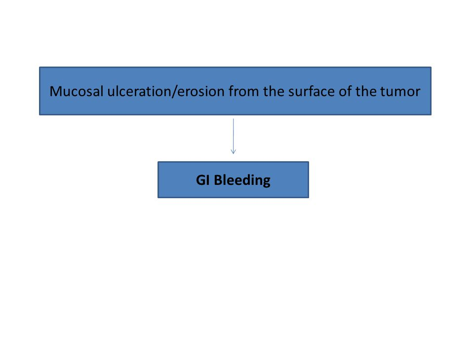 Mucosal ulceration/erosion from the surface of the tumor GI Bleeding